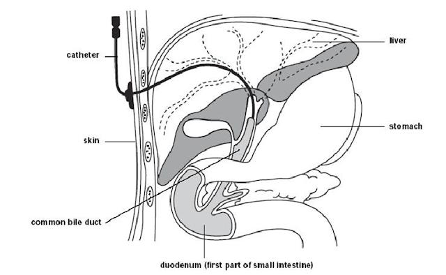 Gambaran prosedur tindakan percutaneous transhepatic cholangiography (PTC) / Kolangiografi transhepatic perkutan, duktus koledokus, saluran empedu, kateter, kulit, batu empedu, kolelitiasis, pemeriksaan penunjang, duodenum, usus halus, abdomen kuadran kanan atas