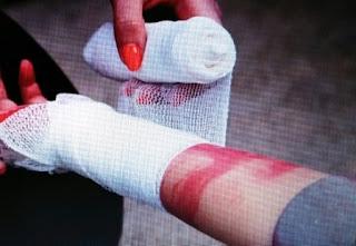 Perdarahan