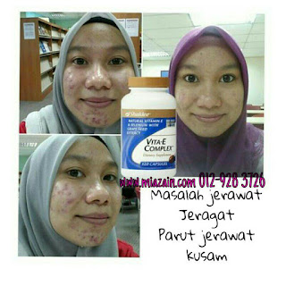 vitamin kulit cantik, vitamin shaklee untuk kulit cantik