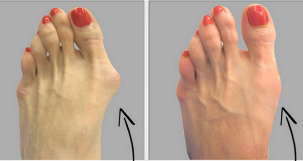 Get Rid Of hallux valgus Onion Feet Naturally