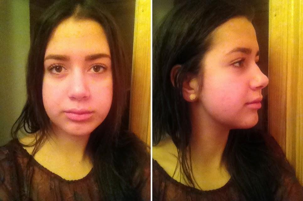 tandställning överbett före efter
