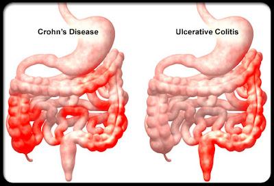 Doença de Crohn e Retocolite Ulcerativa: conheça os sintomas e tratamento das doenças inflamatórias intestinais