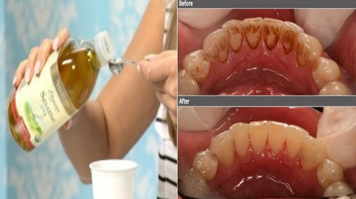 Here's How To Remove Plaque, Tartar And Bad Bacteria In Your Mouth