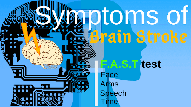 Symptoms of Brain Stroke