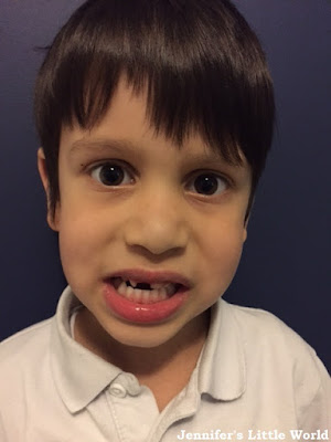 Child with a missing front tooth
