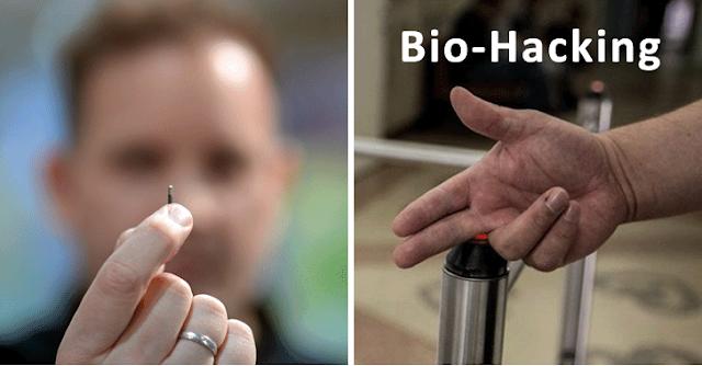 Dokter Memasang MicroChips Di bawah Kulitnya untuk Membuka Pintu dan Mengamankan Data