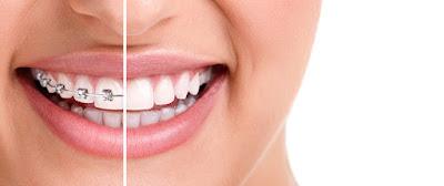 diş telinin yararları nelerdir
