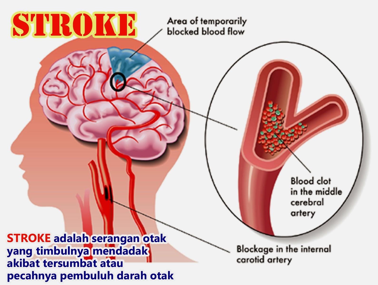 Penyakit Stroke dan Pengobatannya