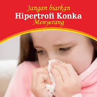 Hipertrofi Konka Hidung