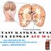 Kenali beberapa penyebab terjadinya Kanker Otak