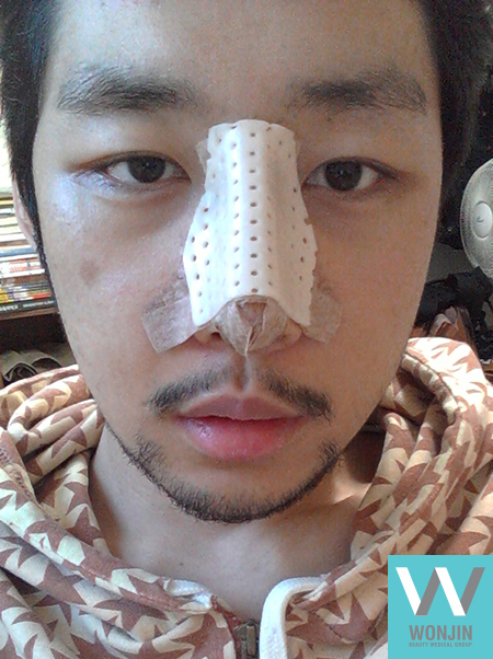 짱이뻐! - Being Attractive With Korean Rhinoplasty