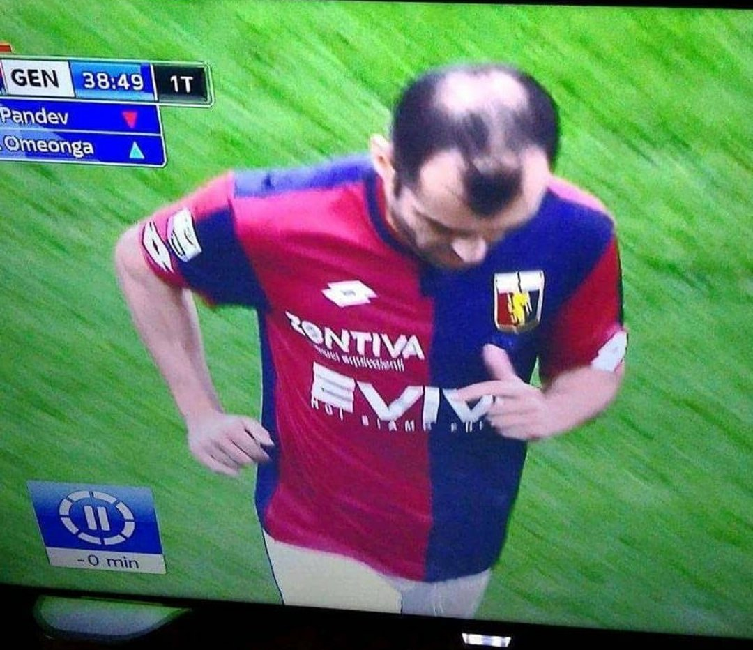 Goran Pandev has this unfortunate, penis shaped hairstyle
