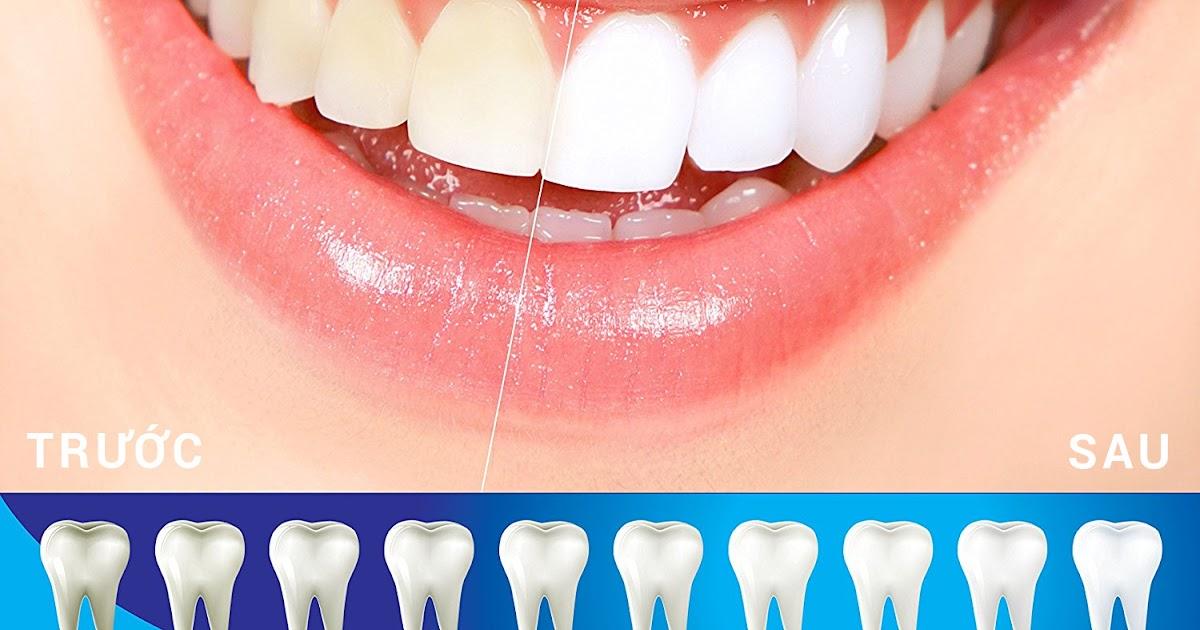 Làm trắng răng – Đến nha sĩ hay tự làm trắng răng tại nhà?