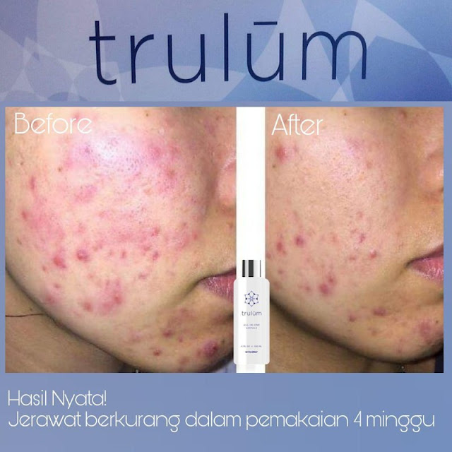 Jual Serum Penghilang Keriput Trulum Skincare Sumelap
