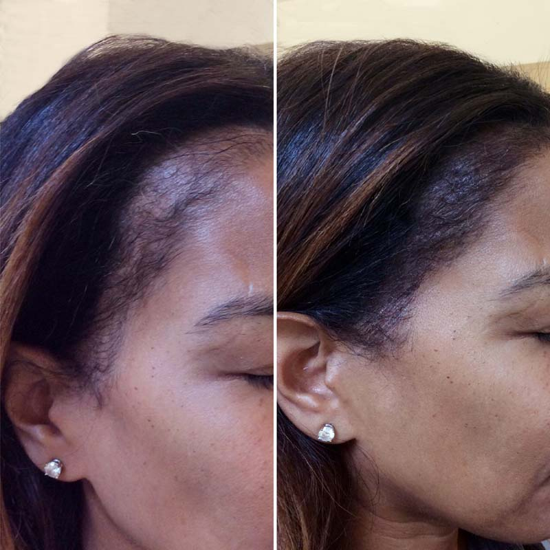 """Scalp Microblading Is the Latest """"It"""" Treatment for Hair Loss"""