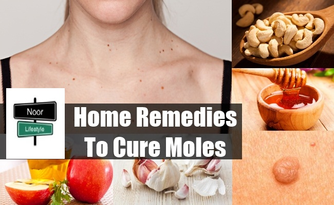 Home Remedies: TOP BEST HOME REMEDIES TO CURE MOLES