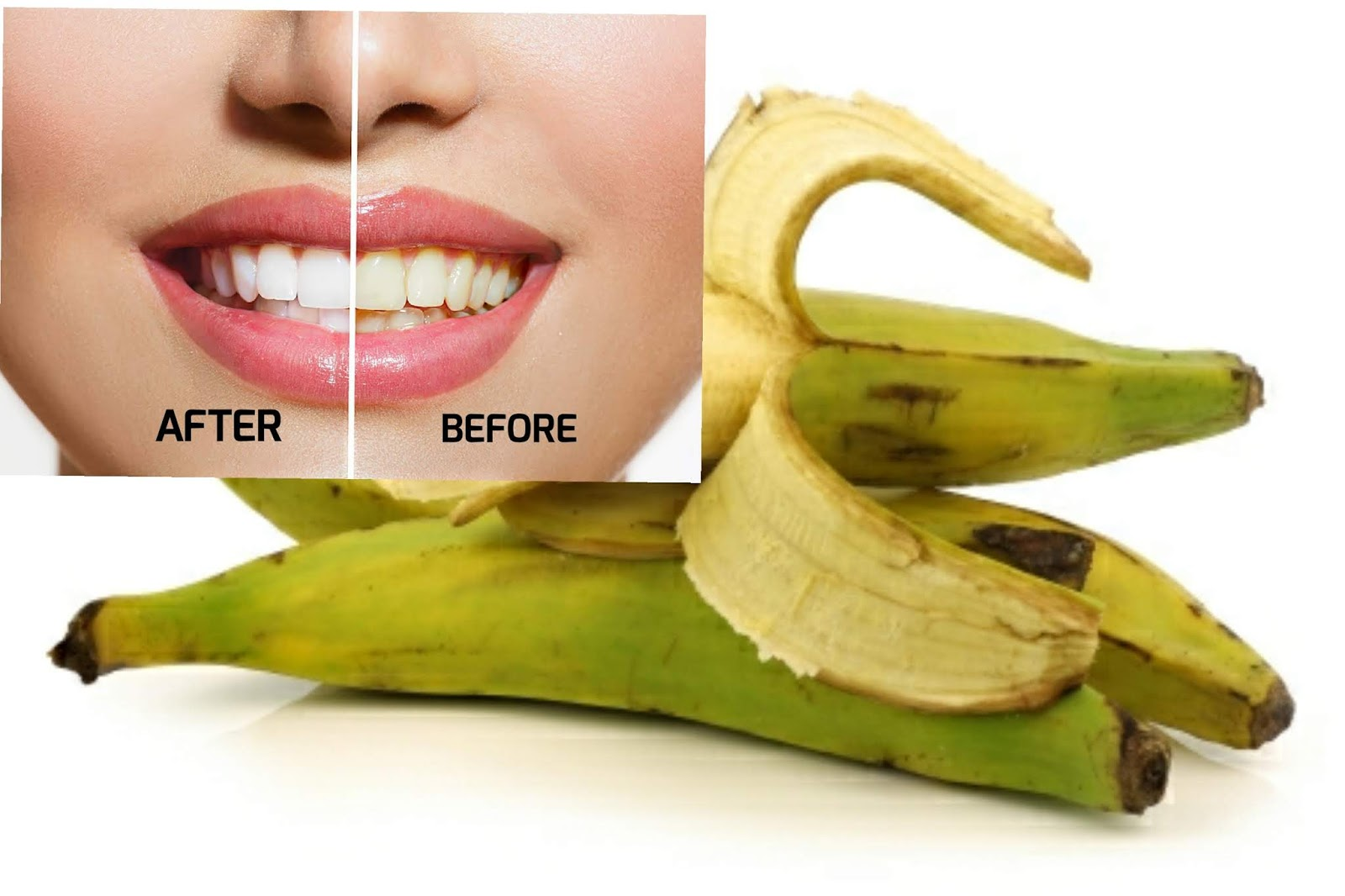 How To Whiten Teeth With Plantain Peels