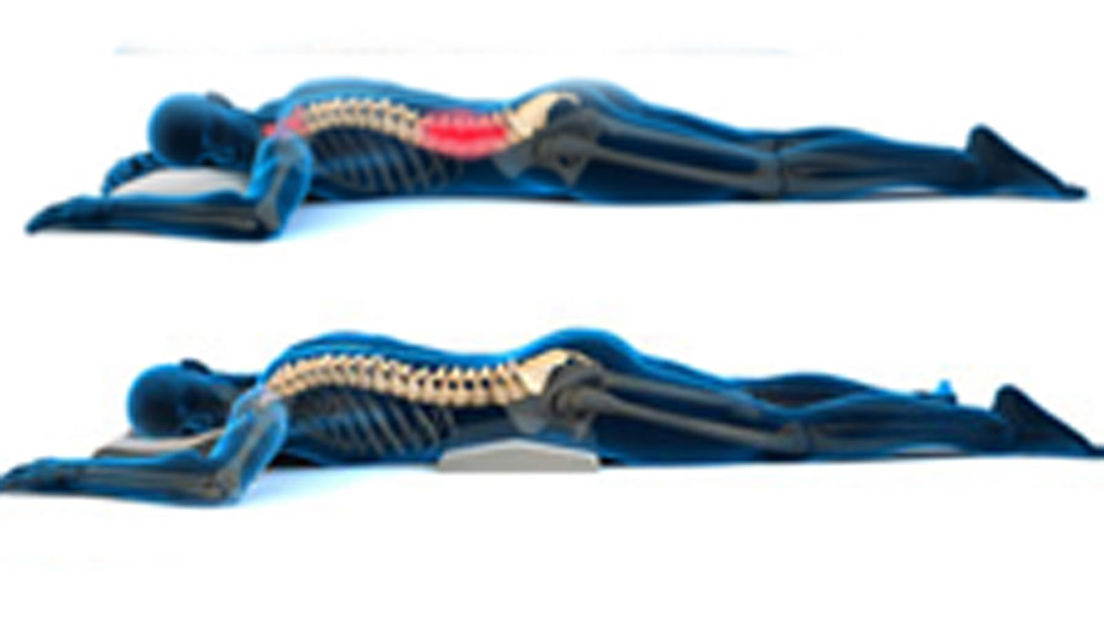 Back Pain And Sciatica Treatment Naturally