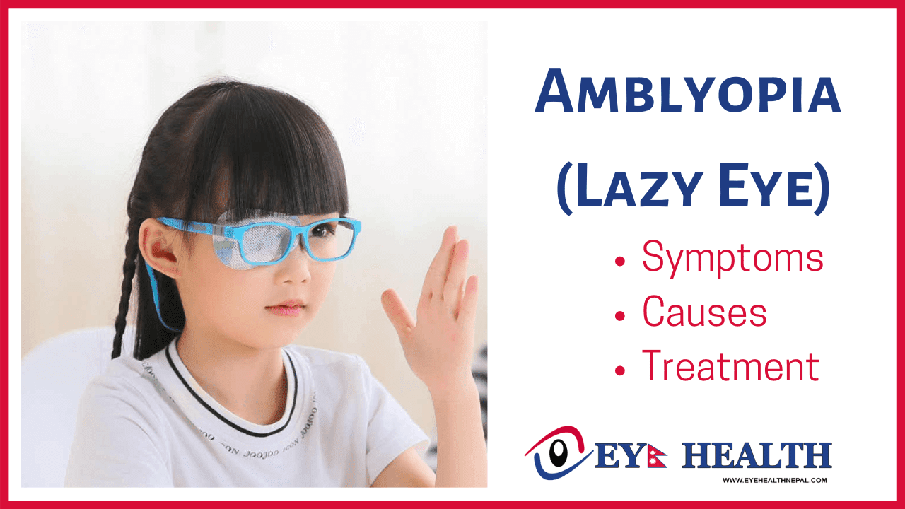 Amblyopia, Its Causes, and Treatment