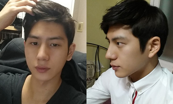짱이뻐! - Korean Plastic Surgery Made Him Even More Handsome