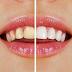 Vous manquez d un sourire éclatant ? Voici Une Methode Tres Efficace Pour Blanchir Vos Dents à La Maison ..
