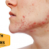 Major Causes Of Acne Which You Doesn't Know