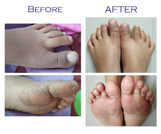 before after dry cracked skin on toes