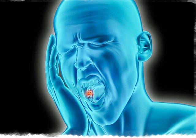لتسكين الم الاسنان الشديد