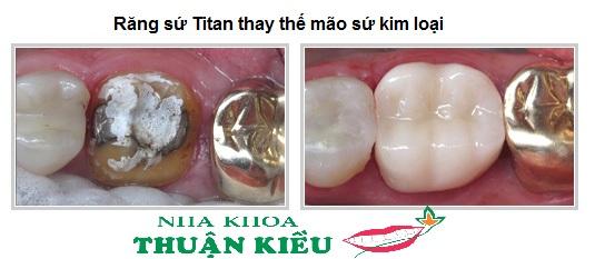 boc-rang-su-titan-nha-khoa-thuan-kieu-2015