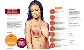 Efeitos do tratamento contra o câncer de mama são classificados como graves ou gravíssimos