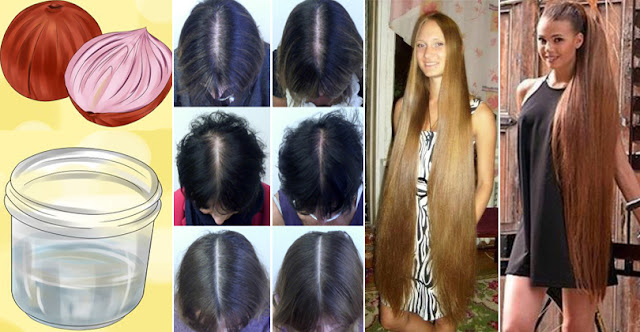 How To Stop Hair Loss Within 2 Days And Get Healthy Hair