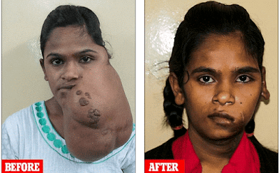 Surgeons remove massive tumour growing on young girl's cheek