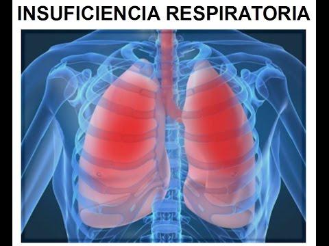 Insuficiência respiratória - O que é, causas, sintomas, diagnóstico