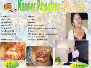 testimoni   Kanker Payudara  dengan sne kapsul dan Wis D essence