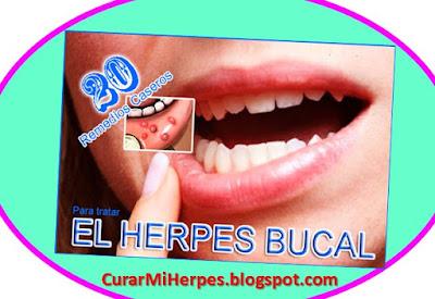 como-curar-un-herpes-labial-remedios-caseros-fuegos-labiales