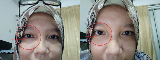 Cara Hilangkan Lingkaran Gelap Dan Kedutan Bawah Mata