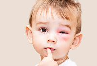 Gigitan Penyebab Alergi