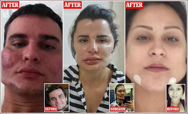 Dokter Kecantikan Dituntut Karena Melakukan Praktek Yang Menyebabkan Puluhan Wajah Pasiennya Hancur