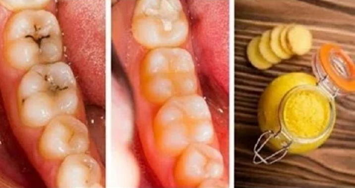 Here's How To Cure Cavities And Teeth Degradation Naturally And Easily At Home