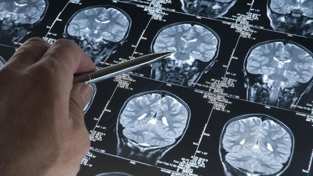 Científicos logran 'revertir completamente' alzhéimer en ratones