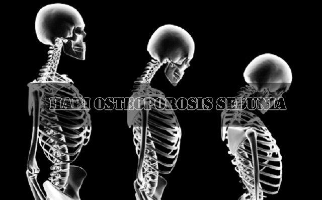Asal Mula Hari Osteoporosis Sedunia