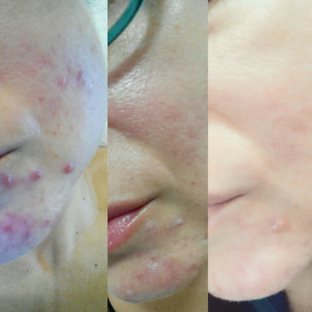 evolucion-acne