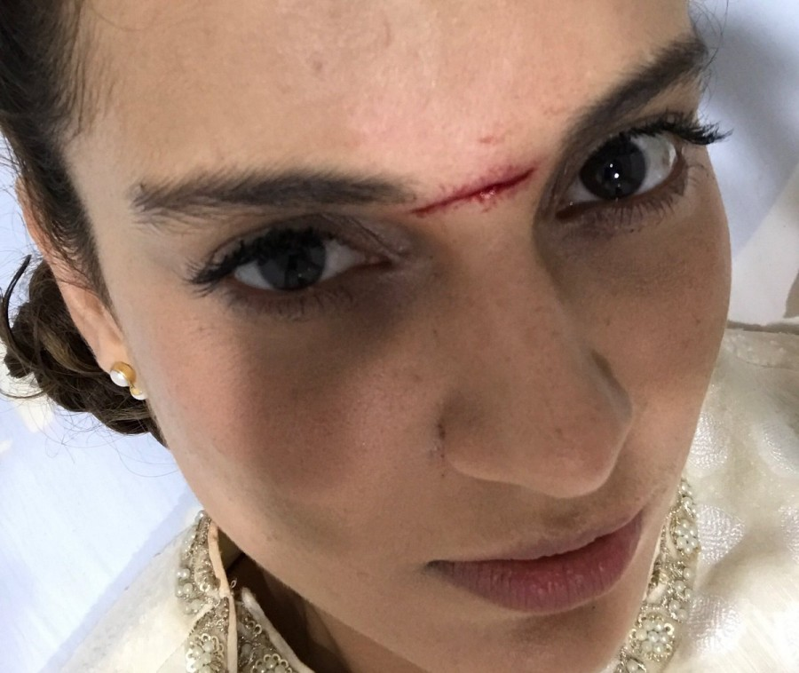 Kangana Ranaut Injured on 'Manikarnika' On Location Set