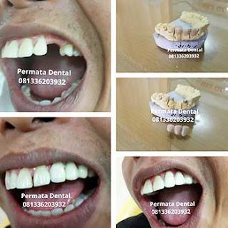 gambar foto gigi palsu permanen gigi tiruan cekat crown bridge metal porselen