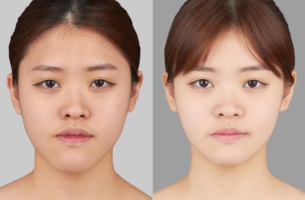 짱이뻐! - Before and After Photos Korean Two Jaw Surgery