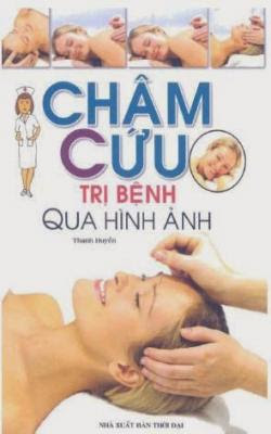 Châm cứu trị bệnh qua hình ảnh - Thanh Huyền