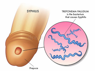 Daftar Obat Tradisional Untuk Menghilangkan Bakteri Sipilis Super Ampuh Obat%2Bsiiipilis%2Braja%2Bsinga