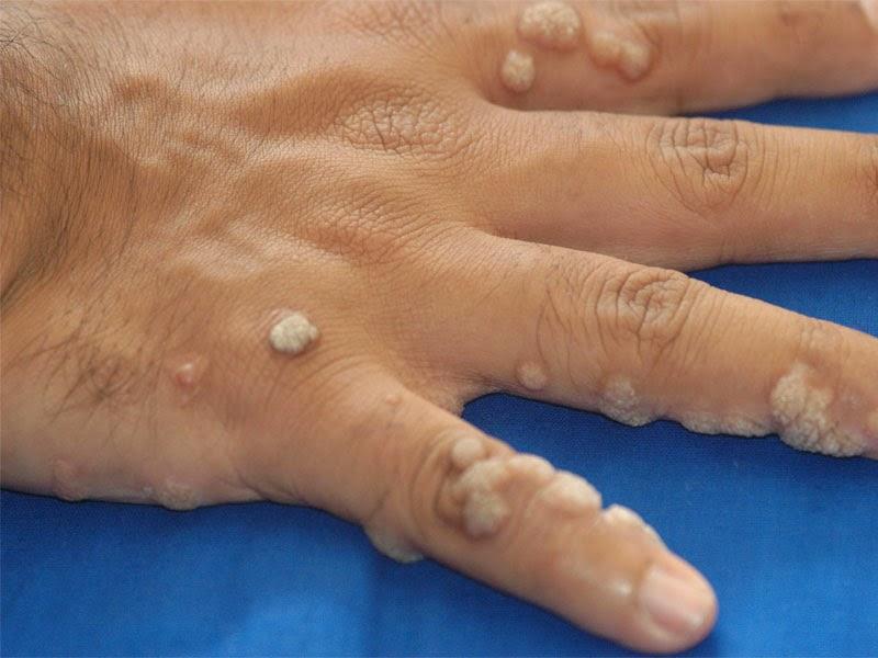 warts and skin cancer)