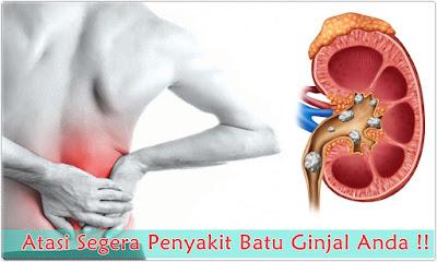pengobatan untuk batu ginjal tanpa operasi yang ampuh