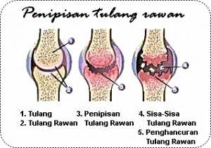 tip atasi sakit sendi; kenapa sakit sendi; ubat apa untuk sakit sendi; iktiar sakit sendi; sakit sendi; shaklee untuk sendi